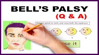 Bell's palsy Upper and Lower Motor Neuron Lesions - Q & A