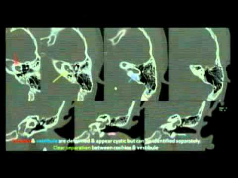 Radiology Grand Rounds 3-19-15