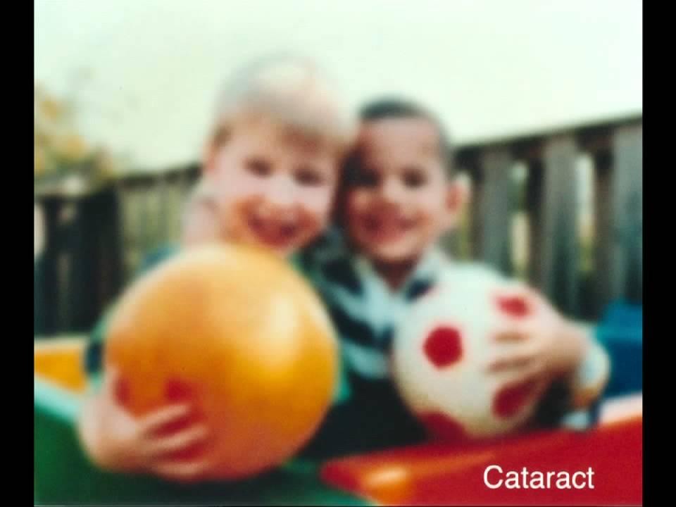 Sunshine Seniors Cataracts Macular Degeneration And Glaucoma