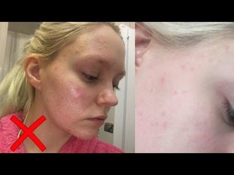 🆘КАК ПОБЕДИТЬ ПРЫЩИ? Моя борьба с аллергией