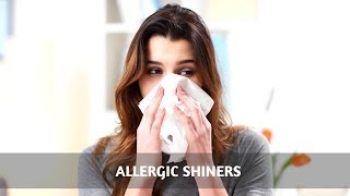 Mouth Breathing And Allergic Shiners
