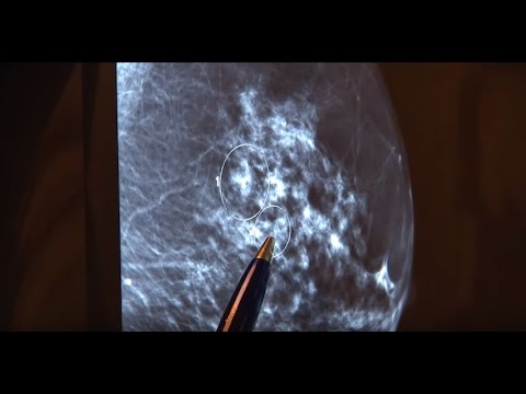 Stereo Upright Breast Biopsy 10 Gauge with Mammotome revolve