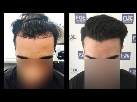 FUE Hair Transplant (2200 grafts in NW-lll Pattern),  Dr. Juan Couto - FUEXPERT CLINIC