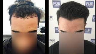 FUE Hair Transplant (2200 Grafts in NW-lll Pattern), Dr. Juan Couto - FUEXPERT CLINIC- Madrid, Spain