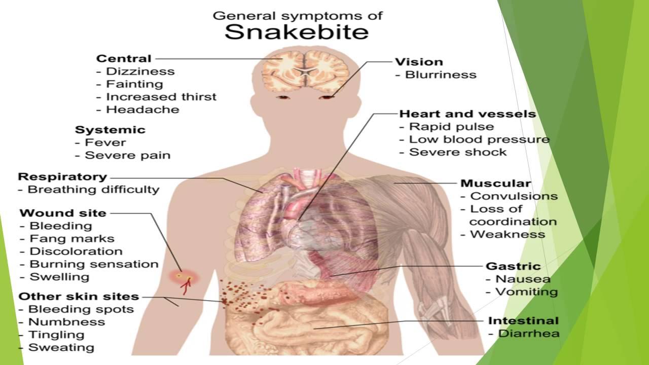 Snake bite - YouTube