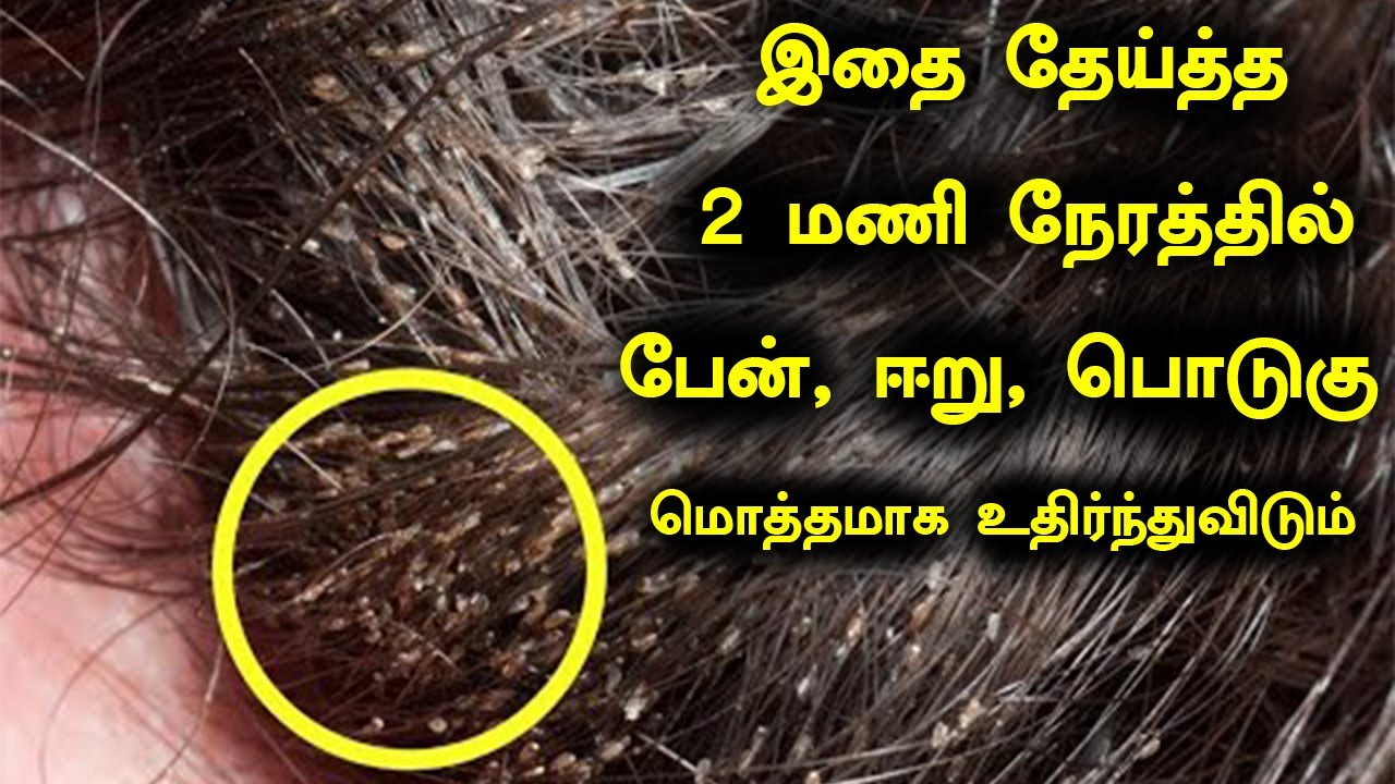 Download இதை தேய்த்த 2 மணி நேரத்தில் பேன், ஈறு, பொடுகு மொத்தமாக உதிர்ந்து விடும்  Lice Removing Tips in Tamil