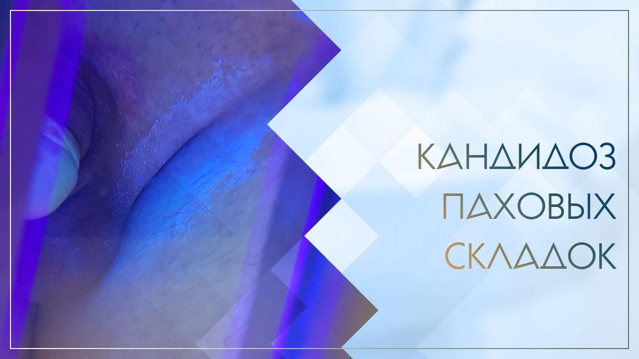 😐 Кандидоз паховых складок. Клинический случай №36