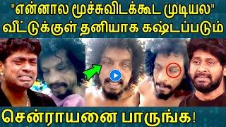 சற்றுமுன் நோய்த்தொற்றால் கஷ்டப்படும்சென்ராயனை பாருங்க! Senrayan | Biggboss2 | Comedy Actor |