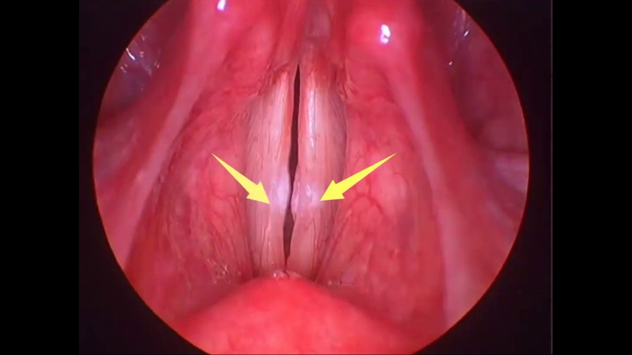 cirugia de cuerdas vocales para cantar