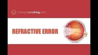 kezelhető-e a myopia hyperopia-val