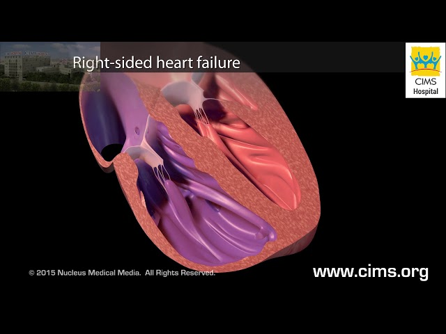 Effects of Congestive Heart Failure