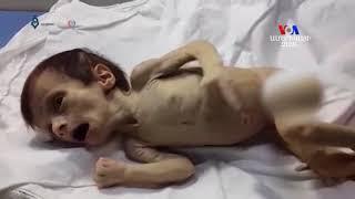 Սիրիայի որոշ հատվածներում երեխաներ են մահանում թերսնման հետեւանքով