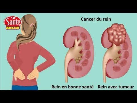 maladie chronique, telle que le cancer 7 signes qu'un cancer se développe dans vos reins
