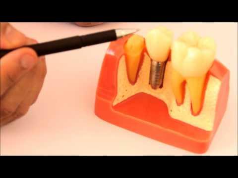 سعر وتكلفة زراعة الأسنان