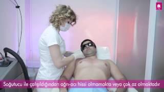 Erkekler İçin Lazer Epilasyon Antalya - DK Klinik