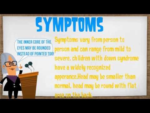 Down Syndrome Presentation - YouTube