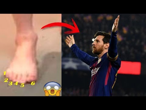 Messi tiene 6 DEDOS En El Pie Derecho: ¿Realidad o FAKE?