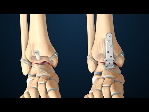 Ankle fusion decreases the majority of up-and-down motion the ankle joint handles