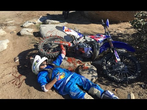 Worst Dirt Bike Crash Ever Helicopter Rescue Youtube