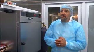 علاج السكري بالخلايا الجذعية في الأردن