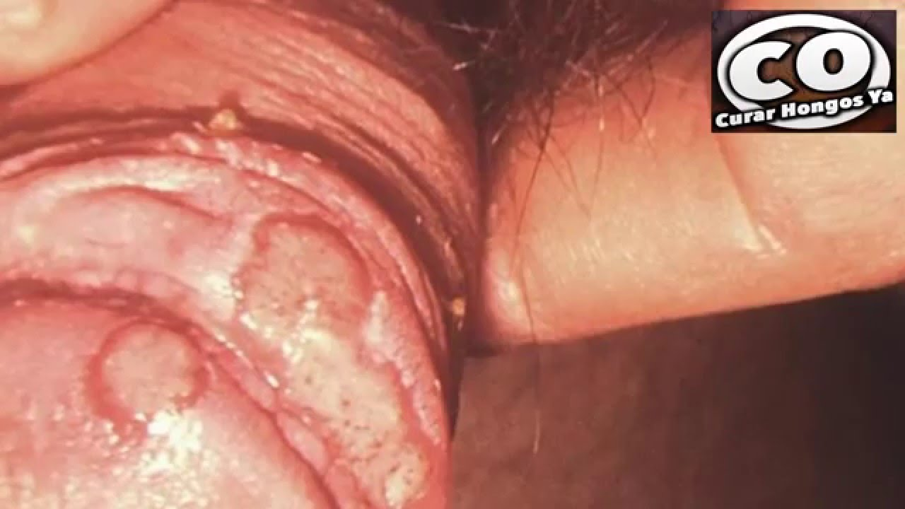 pene infections