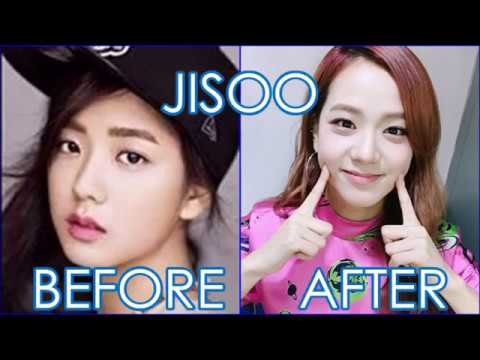 Blackpink | Before and After