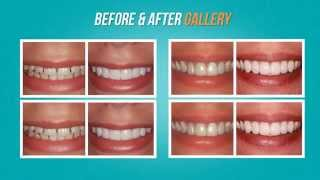 Emergency Dentist Philadelphia 24 Hour 215.977.4330