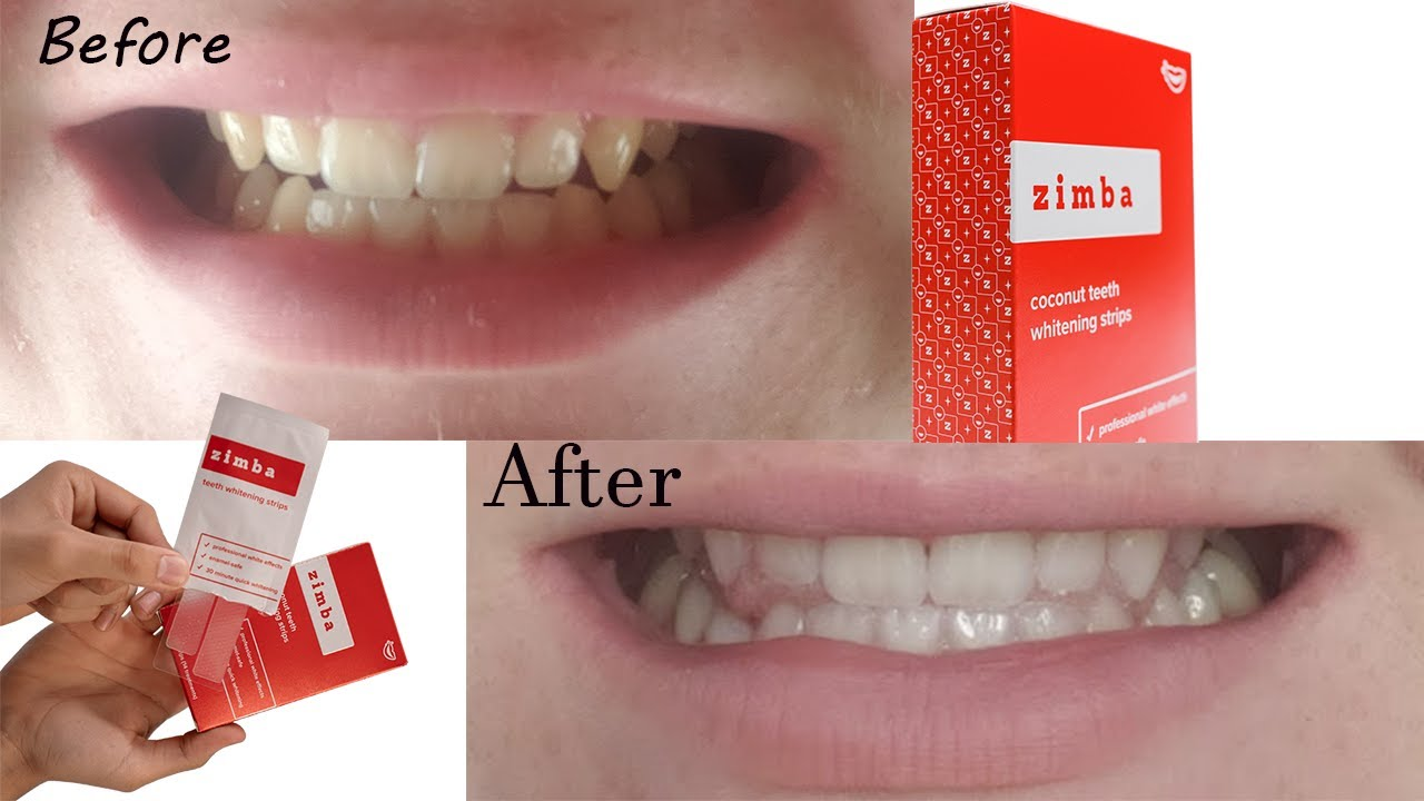 Zimba Whitening Strips Review Youtube