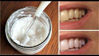 Di adiós a los dientes amarillos en 2 minutos, con este fántastico truco!!