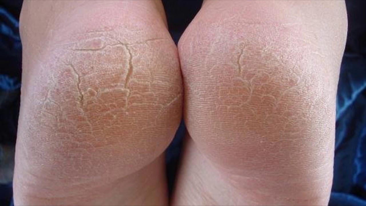 Грибок стопы с трещинами