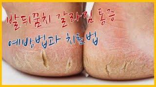 발뒤꿈치 갈라짐 통증 원인과 예방법