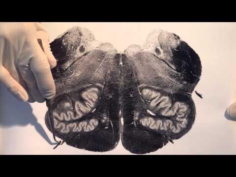 Brain Stem & Reflexes: Neuroanatomy Video Lab - Brain Dissections