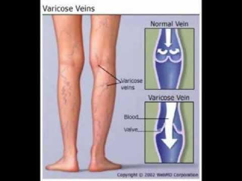 best varicose vein cream reviews