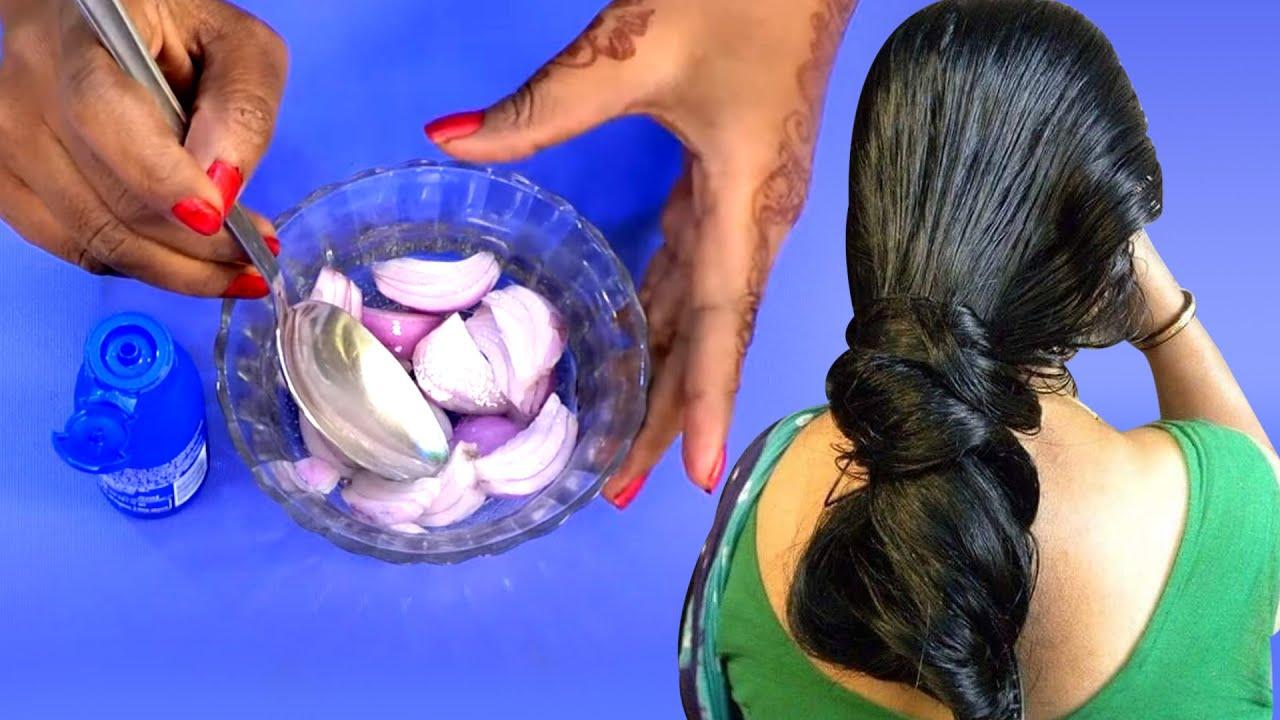 ఈ నూనె రాస్తే మీ జుట్టు రోజుకి ఒక్క అంగుళం పొడవు పెరుగుతుంది | Hair Fall Tips | SumanTv Health Care