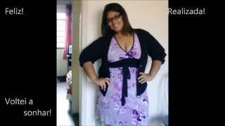 5 meses de Gastroplastia - 43kg Eliminados