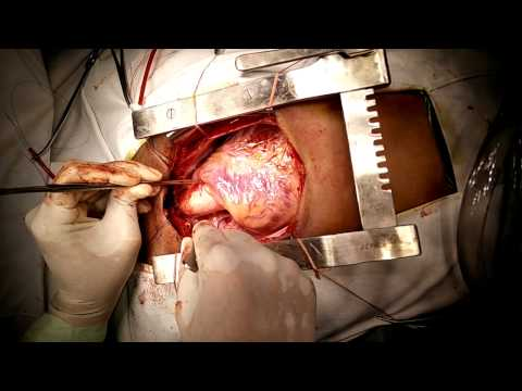 Absent Right Superior Vena Cava (  Right SVC ): Demonstration by Dr.Vishal N. Pingle