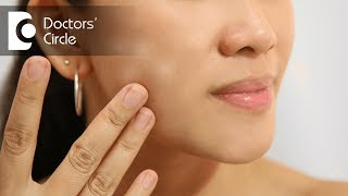 What causes white spots on face? - Dr. Rasya Dixit
