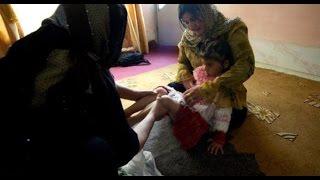 يونيسيف: 200 مليون امرأة وفتاة خضعن لعملية الختان