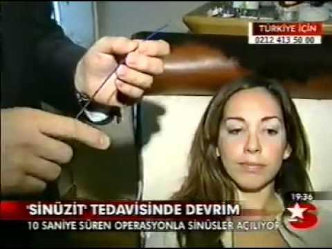 Süreyya Şeneldir Balon Sinoplasti Yöntemi StarTV