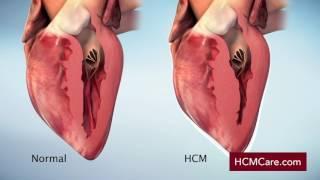 Hypertrophic Cardiomyopathy (HCM) Mechanism of Disease Video