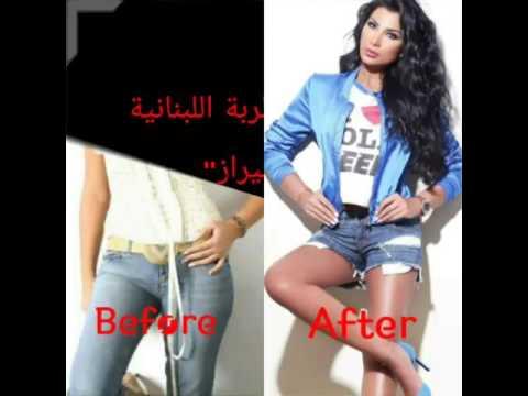 المطربة شيراز قبل وبعد التجميل - shiraz singer before and after surgery