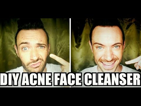 Tip #132: DIY Acne Facial Cleanser (Dirtiest Video Ever)