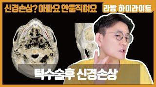 턱 수술후 신경손상에 대해 [신경손상 #4]