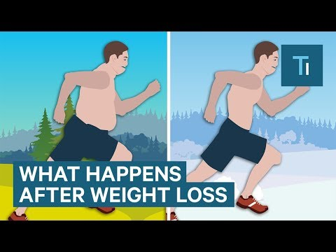 What losing weight does