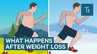 What Losing Weight Does To Your Body And Brain