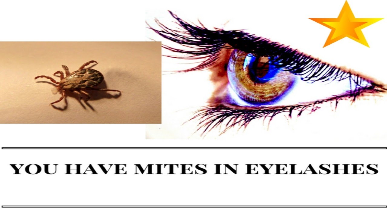 You Have Mites On Your Eyelashes Youtube