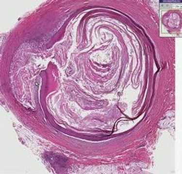 Histopathology Skin--Epidermal inclusion cyst