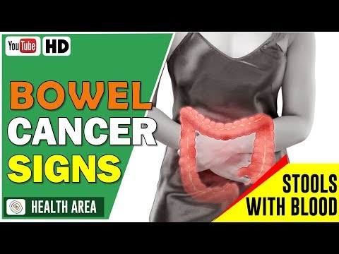 Bowel cancer Symptoms: The 5 warning signs you shouldn't ignore