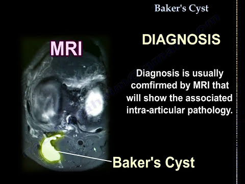 baker's-cyst---everything-you-need-to-know---dr.-nabil-ebraheim