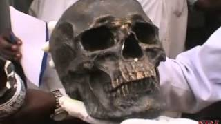 Jinja police arrests man for possessing human skull